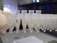 Iki 80 proc. ligų sukelia įvairūs piktybiniai mikroorganizmai