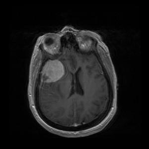 Meningioma vadinamas nepiktybinis smegenų dangalų auglys.