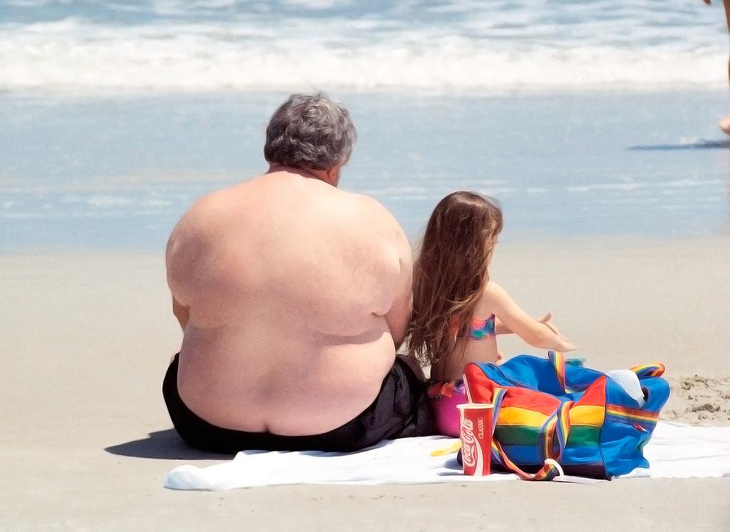 Kaip numesti svorį - greitai, lengvai ir neskausmingai?